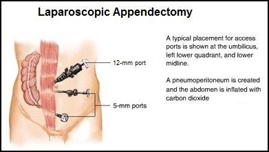 Best Appendix Surgeon in Delhi Appendectomy