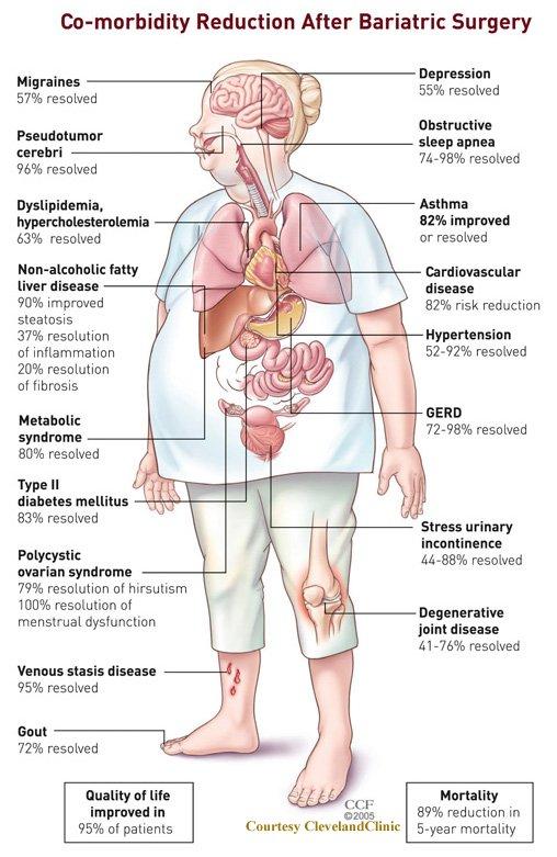 Benefits_of_Obesity_Surgery