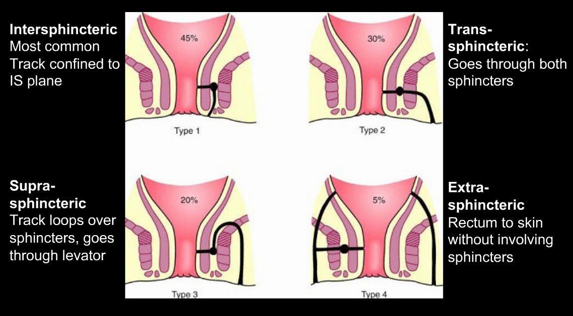 Fistulectomy