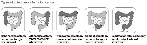 Right hemicolectomy