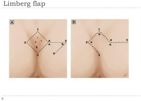 Limberg Flap for Pilonidal Sinus